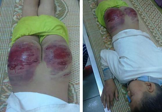 Phẫn nộ bé trai 13 tuổi ở Thái Nguyên bị bố đẻ đánh bầm dập mông, phải nhập viện